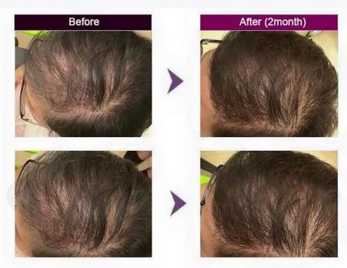 Centro medico estetico specializzato nella cura dell'alopecia, rinfoltimento capelli, prevenzione caduta dei capelli.